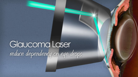 title-news-slt-laser-glaucoma-620x350